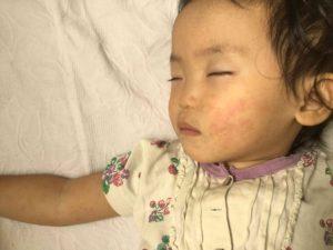 ワクチンを打つ前に:はしか(麻疹)の予防接種を通して考える