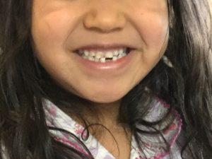 乳歯の虫歯はどれくらい進行したら治療する?