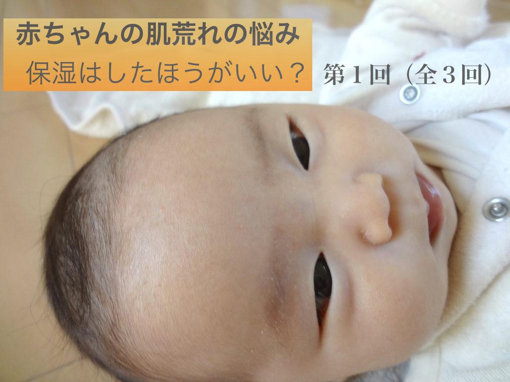 【連載1】赤ちゃんの肌荒れの悩み:保湿はしたほうがいい?